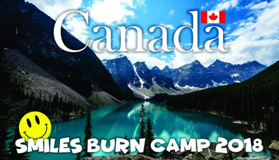 Announcing the 2018 Smiles Burn Camp… in Canada!!!